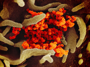 scanning electron microscope image of SARS-CoV-2, also known as 2019-nCoV, the virus that causes COVID-19